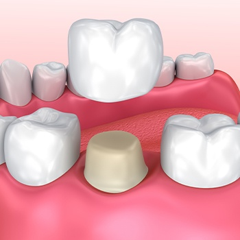 Animated dental crown placement process