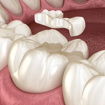Animated metal-free dental restoration placement