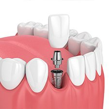 Model smile with dental implant supported dental crown