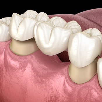 Animated implant supported dental bridge